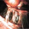 Спаечная болезнь брюшной полости и ЛФК