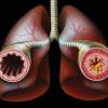 Бронхиальная астма, ее лечение и ЛФК