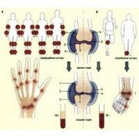 Краткая характеристика инфекционной артрите и ЛФК при данном заболеванииКраткая характеристика инфекционной артрите и ЛФК при данном заболевании